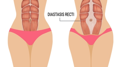 diastasis-recti-signs.jpg